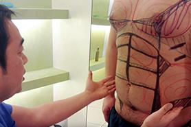 ドクターはいずれも、ベイザー脂肪吸引のエキスパート。技術には絶対の自信があります。